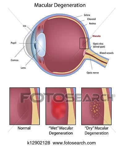 Eye macular degeneration Clip Art | k12902128 | Fotosearch