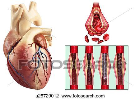 Coronary angioplasty stent insertion, illustration Stock Image | u25729012 | Fotosearch