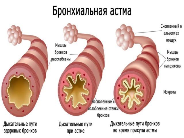 Памятка по бронхиальной астме в картинках