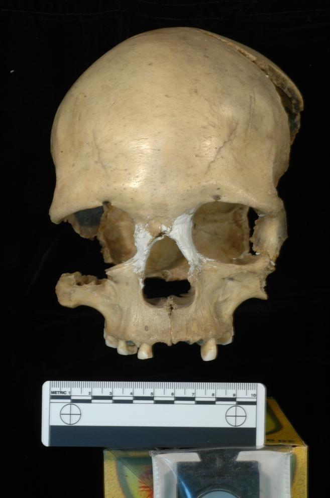 A 35,000-year-old female skull.
