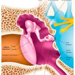 Ear Tympanic Membrane Diagram 2006 Harley Davidson Radio Wiring Myringosclerosis And Tympanosclerosis