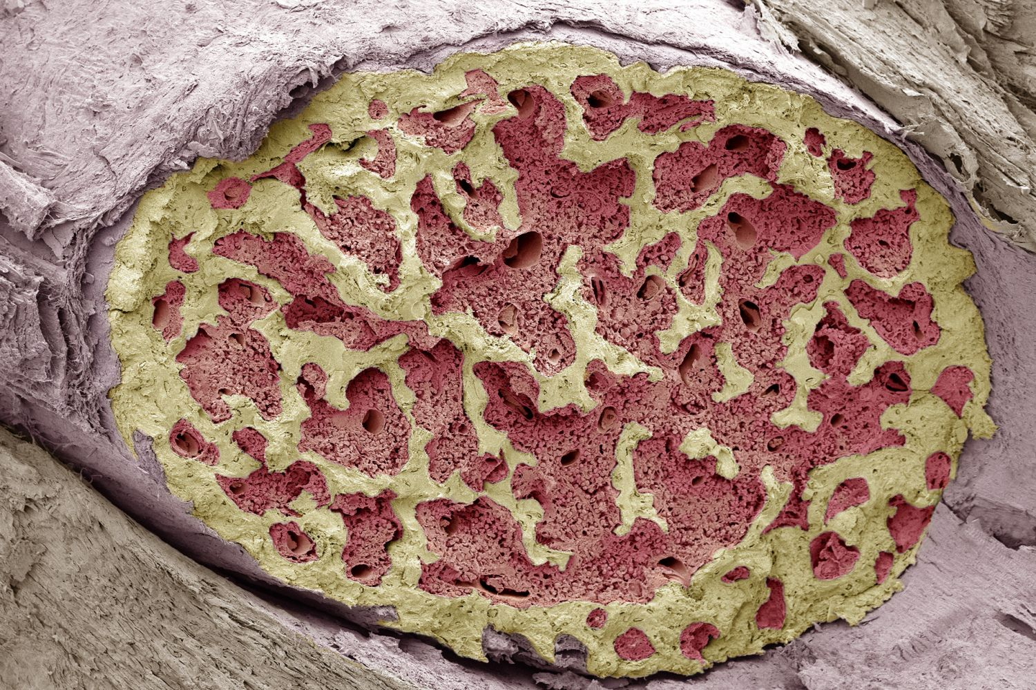 bone marrow cell diagram wiring ac split daikin structure function disease and more