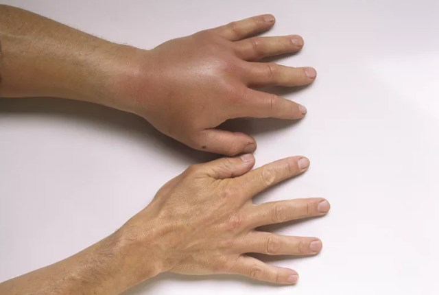 Close-up of two hands, one badly swollen.