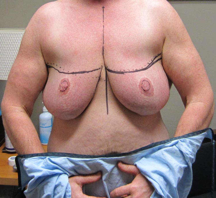 I was not prepared for the horrible experience of having my chest marked up immediately before top surgery