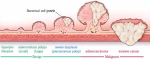 Progression-of-colon-polyp