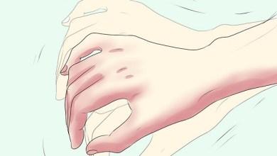 Estaría relacionada alteración del sueño con enfermedad de Parkinson