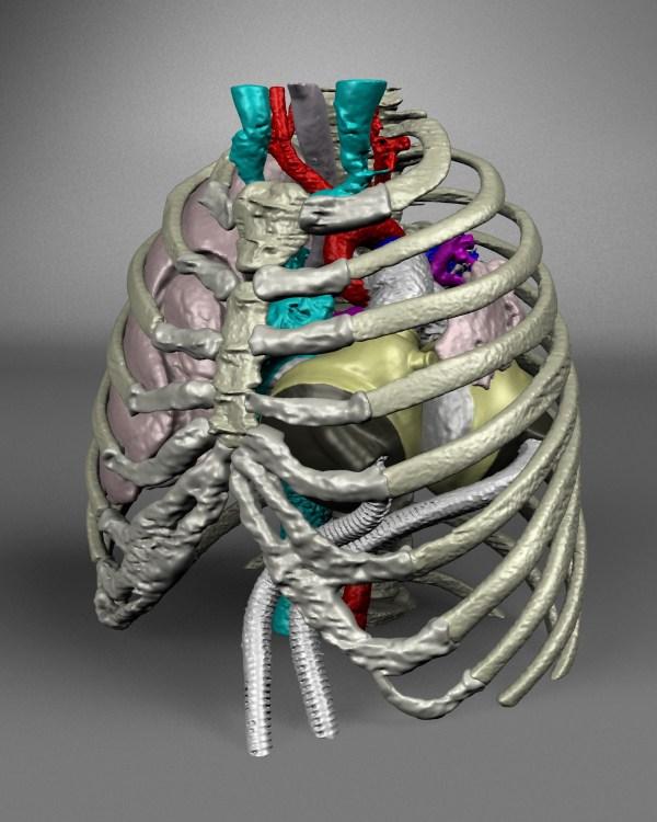 Virtual Artificial Heart Implantation Project Earns Tech