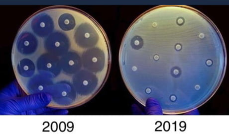 10 Year Challenge. Use antibiotics responsibly.