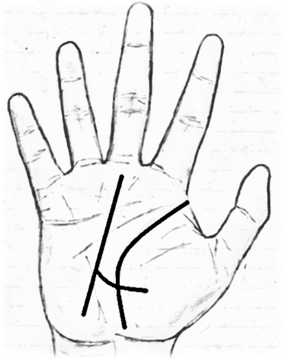 Love Marriage Signs And Love Line Palm Reading In Palmistry