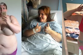 Inspiring Story Of 210 Pound Weight Loss By This Canadian Teacher Mallory Buettner Will Make You Go Wow.