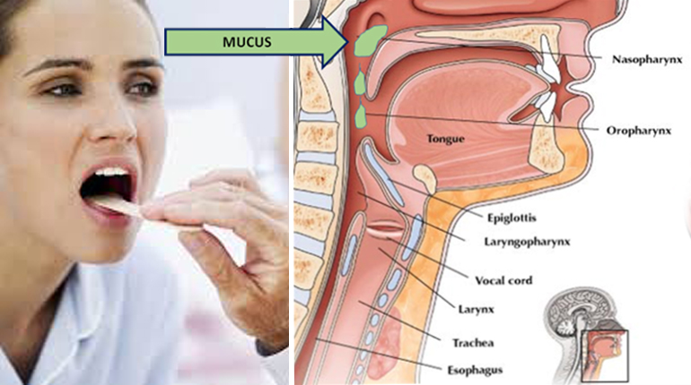 Get Rid of Throat Mucus Faster With These Home Treatments – Funny Stories On The Net -FunnyModo.com