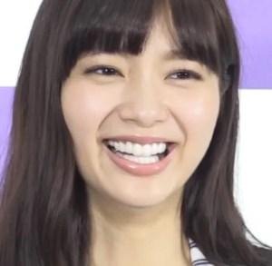 新川優愛 歯 セラミック 差し歯