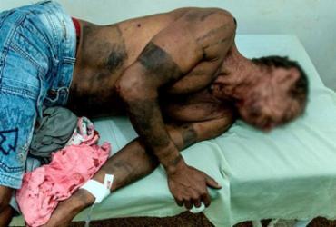 Índios gamelas são atacados por pistoleiros em município maranhense