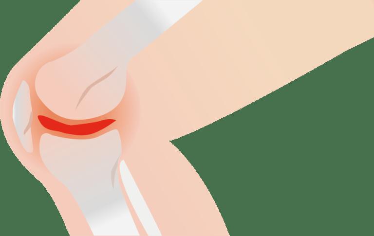 Knie artrose fysio 4 den bosch