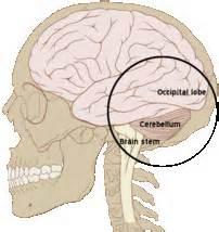17b/7: Occipital headache 後腦頭痛 - 經絡學 acupuncture points - udn部落格