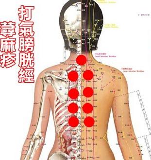 17k/4:urticaria 蕁麻疹。風疹塊 - 經絡學 acupuncture points - udn部落格