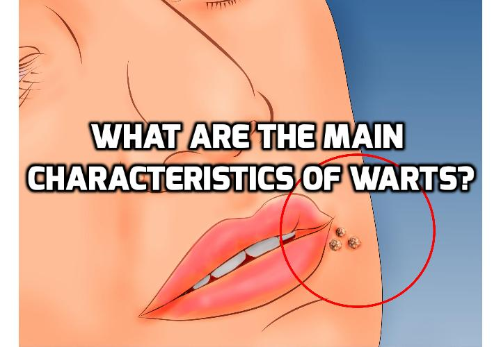 Revealing What Are Really 3 Big Attributes of Warts  - A wart is a small non-cancerous tumor that grows on the outer layer of the skin. Read on here to learn about what can be the 3 main attributes of warts and how to remove them safely naturally permanently.