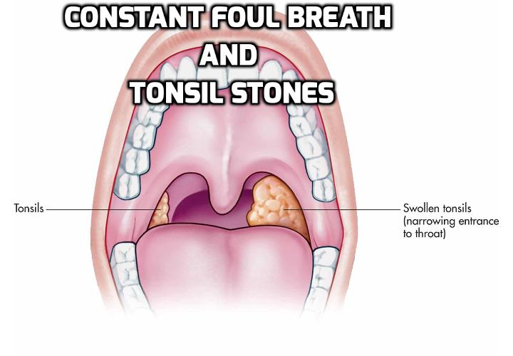 Living with Constant Foul Breath and Tonsil Stones - Most people with tonsil stones also suffer from chronic bad breath that is related to their tonsils' condition, since these small, hardened masses can release an unpleasant, lingering smell if they are not treated.