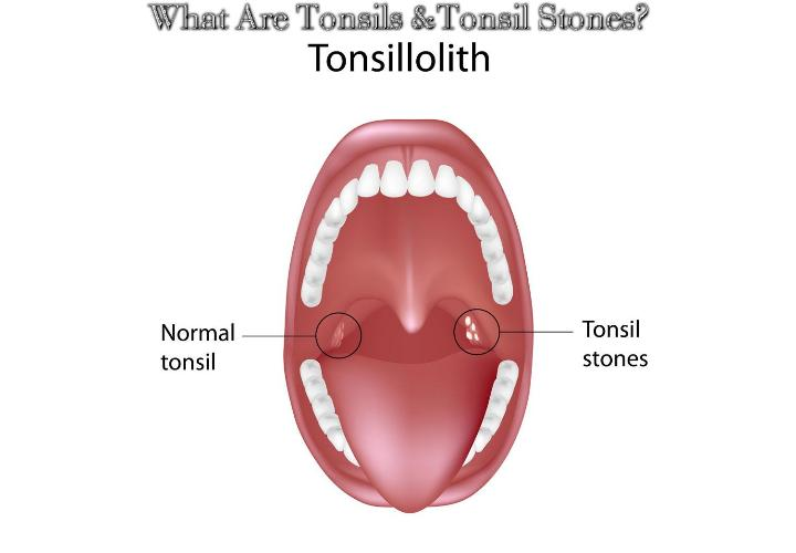 What Are Tonsils And Tonsil Stones? The tonsils function as the body's initial line of defense in the mouth. As integral parts of the immune system, these structures protect the respiratory and gastrointestinal tracts by attacking any viruses, bacteria, and debris that enter the mouth.