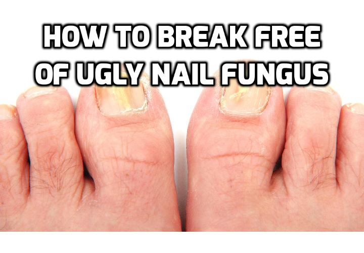 Kefir Is Your Best Ally Against Toe Fungus Infection - So, do you want to know why you have certain persistent problems with things like ringworm, toe fungus infection, and athlete's foot? All of these are caused by a fungus that can spread and grow like crazy and last for years and years.