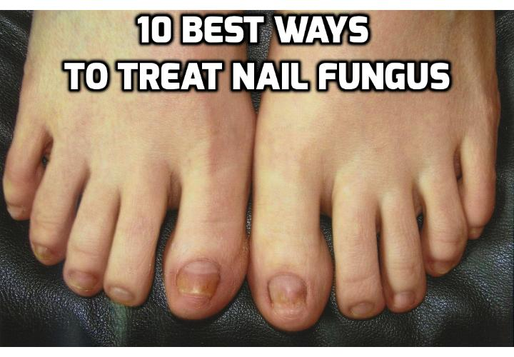 10 Best Ways to Treat Nail Fungus - If you are fighting a nail fungus or infection, you are not alone. Medical professionals have learned that around half the people in this country will end up with a nail fungus by the time they are age 70. The U.S. National Library of Medicine has determined that half of the causes of nail disease are due to fungus. Here are 10 best ways you can use to treat nail fungus.