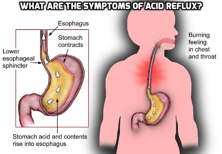 What Are The Symptoms of Acid Reflux? Since acid reflux, also called GERD (gastroesophageal reflux disease), can cause patients a great deal of discomfort and result in severe complications, it is highly important to know how to identify symptoms of acid reflux in order to quickly diagnose and treat it.