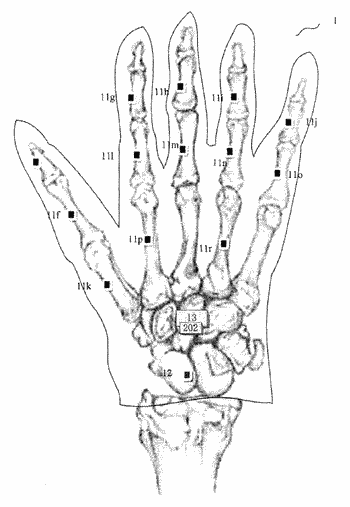 Sign Language-related patent applications