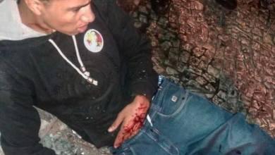 Foto de Candidato do PT é baleado pela Guarda Municipal em Curitiba