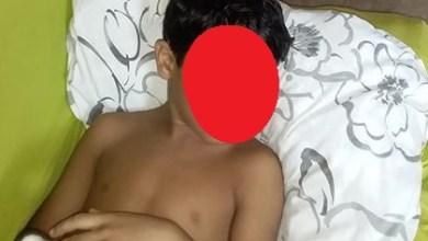 Photo of Estudante é atingida na cabeça dentro de Escola em Paço do Lumiar