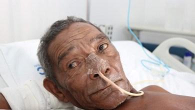 Foto de Bequimãoense está internado em Goiânia-GO sem família