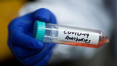 Photo of Israel anuncia descoberta de anticorpo para combater coronavírus