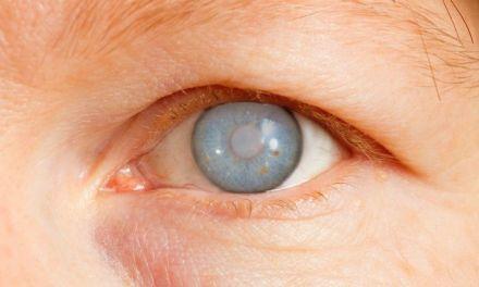 Neuropatía óptica por exposición química