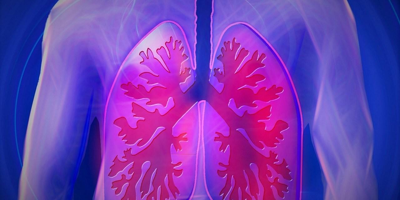 Mesotelioma pleural provocado por asbesto