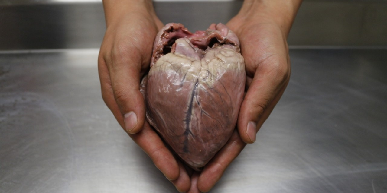 Repercusiones cardiacas por COVID-19