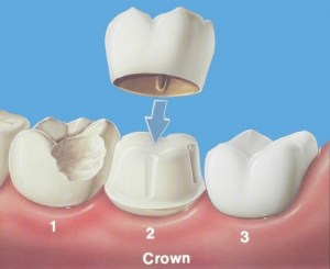 Dental Crown Work
