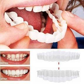 snap-on braces