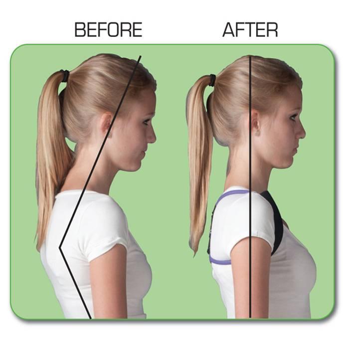 beforeafter 4 Back Posture Corrector