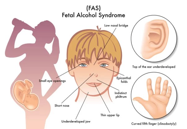 Alcohol is a common human teratogen that, when ingested by a pregnant woman, can produce a wide array of fetal complications