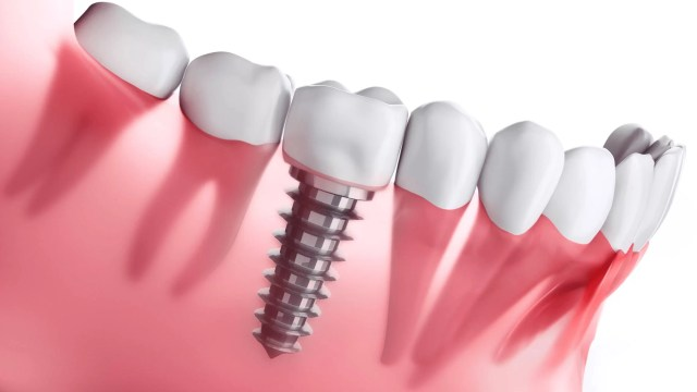 Dental implants, such as artificial tooth, fillings, and dentures, are fairly common in the practice of dentistry
