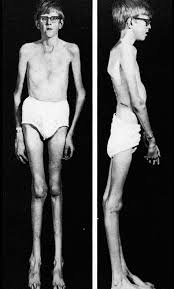 Marfan syndrome: The defect of connective tissue