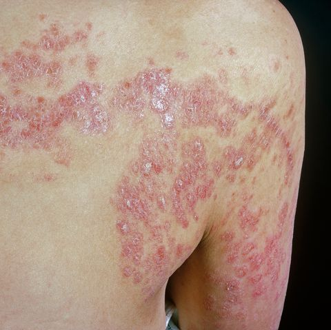 Psoriasis, inflammatory disease of the skin | causes and treatment