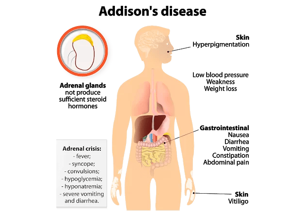 Adrenal insufficiency (Addison disease) and treatment