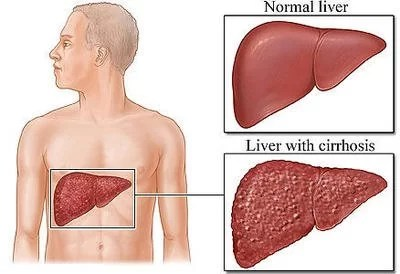 Cirrhosis of the Liver  Causes, signs and treatment