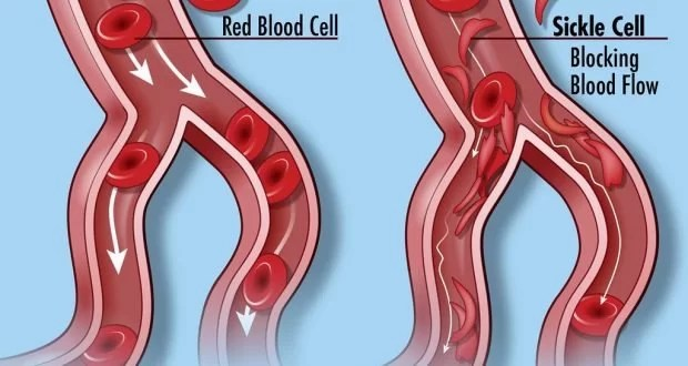 Sickle cell disease   Pathophysiology and Treatment