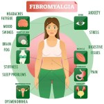 Fibromyalgia   causes, complications and treatment