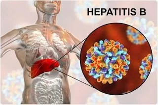 Hepatitis B Infection | diagnosis and management