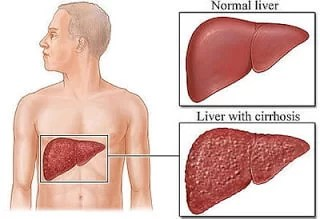 Hepatitis C Infection | diagnosis and management