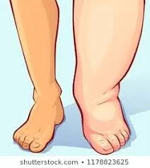What is Edema, causes and formation