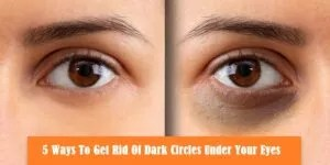 Read more about the article 5 Ways To Get Rid Of Dark Circles Under Your Eyes