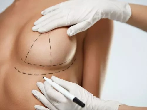 BREAST REDUCTION AUCKLAN